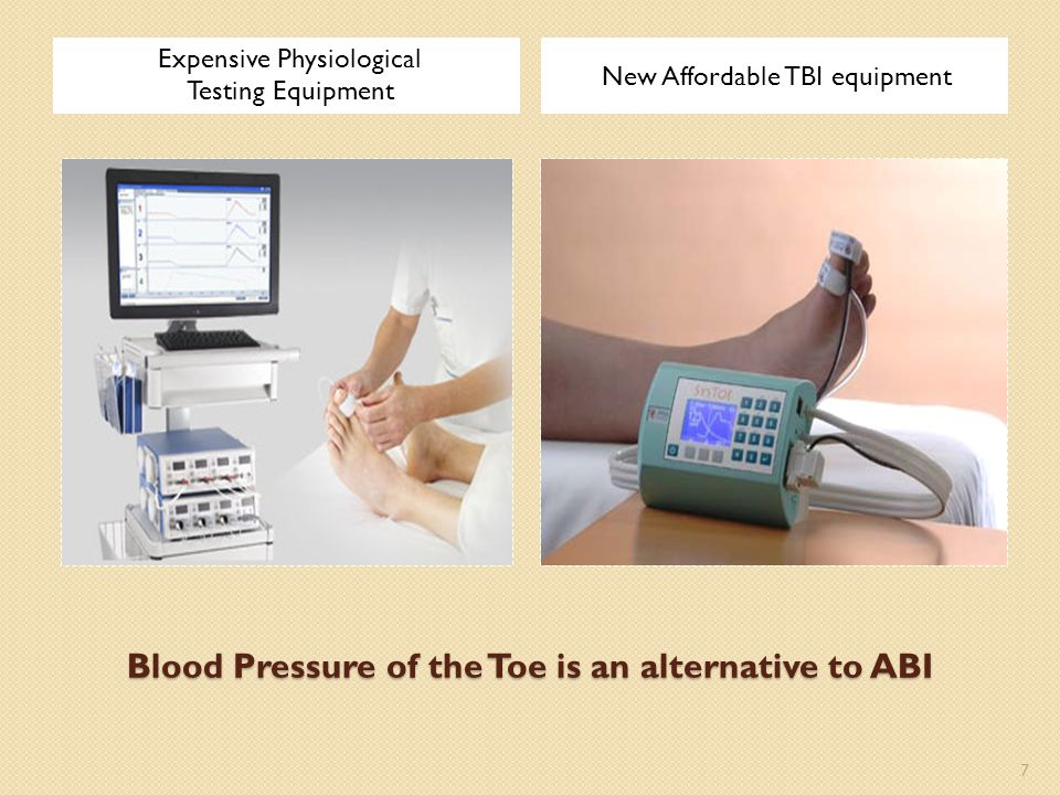 Blood Pressure of the Toe is an alternative to ABI
