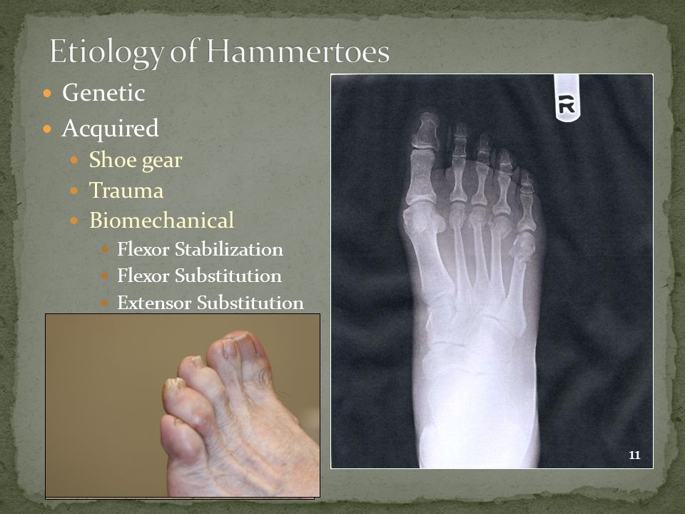 Etiology of Hammertoes