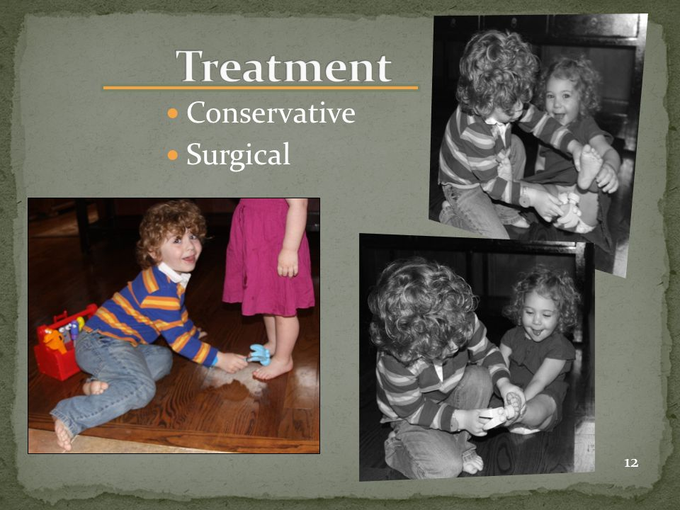 Treatment Conservative Surgical 12