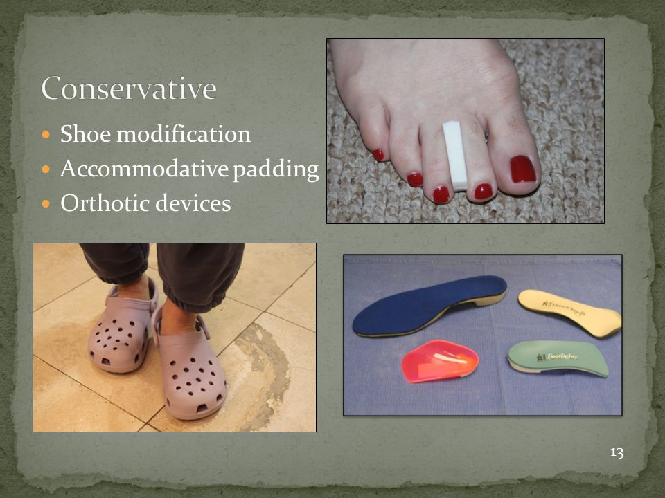 Conservative Shoe modification Accommodative padding Orthotic devices