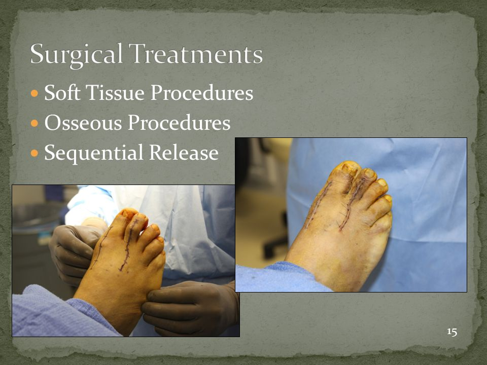 Surgical Treatments Soft Tissue Procedures Osseous Procedures