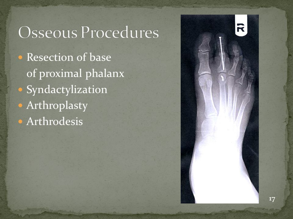 Osseous Procedures Resection of base of proximal phalanx