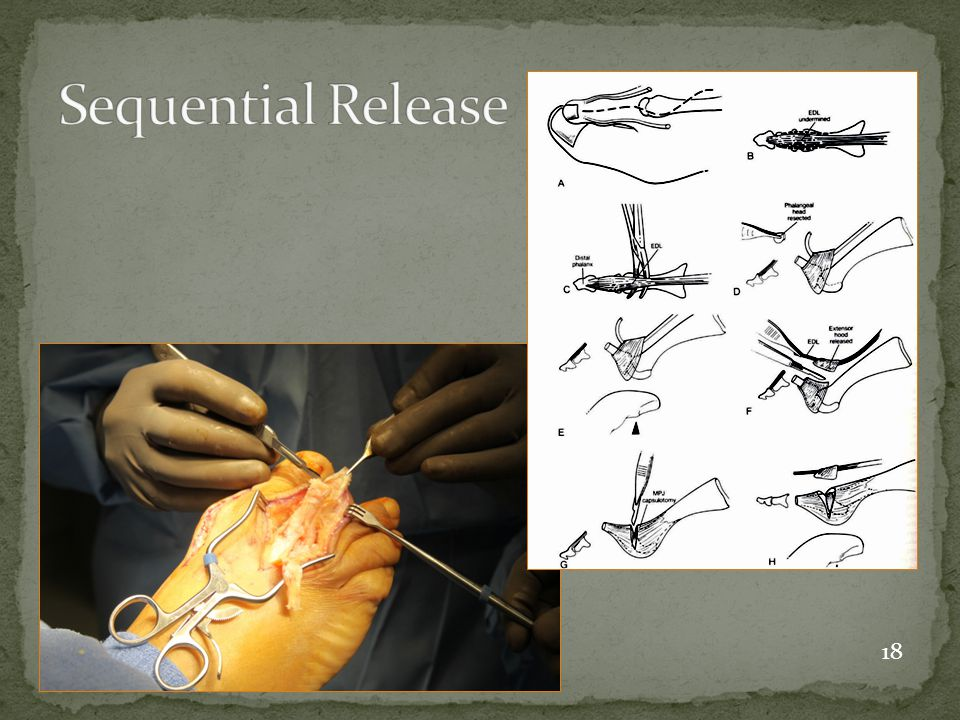 Sequential Release 18