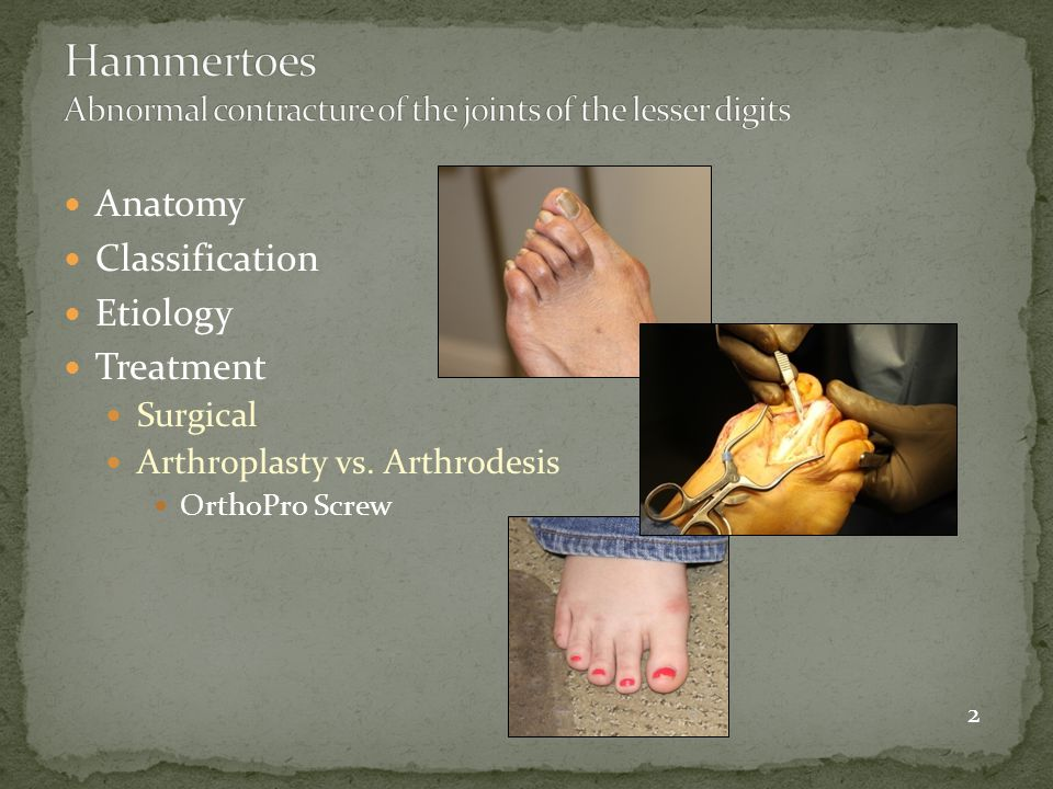 Hammertoes Abnormal contracture of the joints of the lesser digits