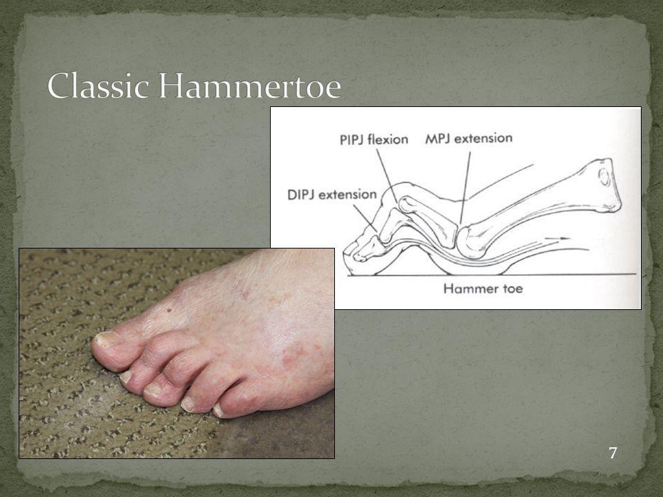 Classic Hammertoe 7