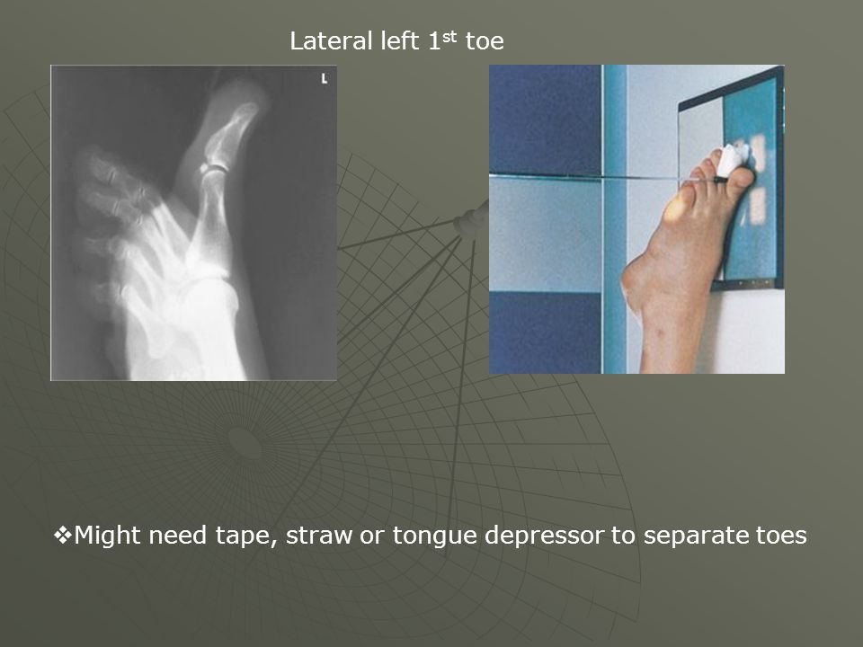 Lateral left 1st toe Might need tape, straw or tongue depressor to separate toes