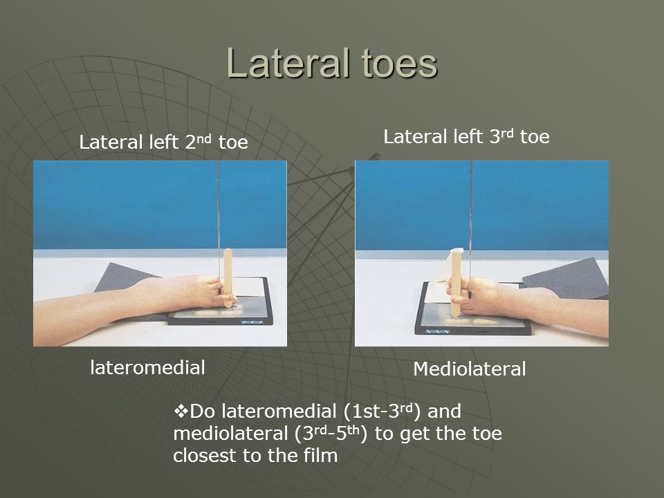 Lateral toes Lateral left 3rd toe Lateral left 2nd toe lateromedial