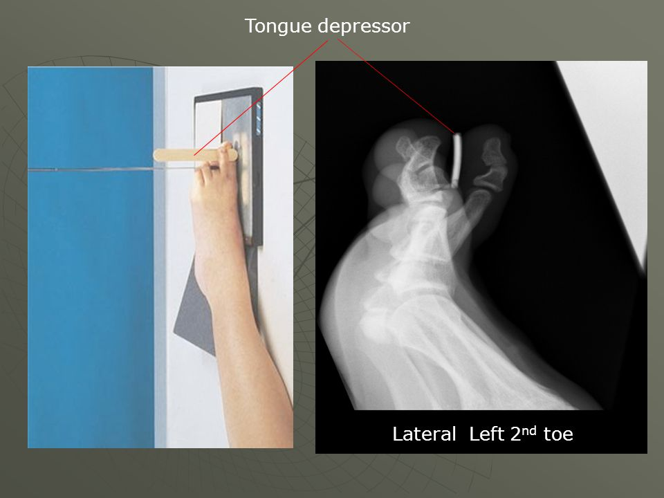Tongue depressor Lateral Left 2nd toe