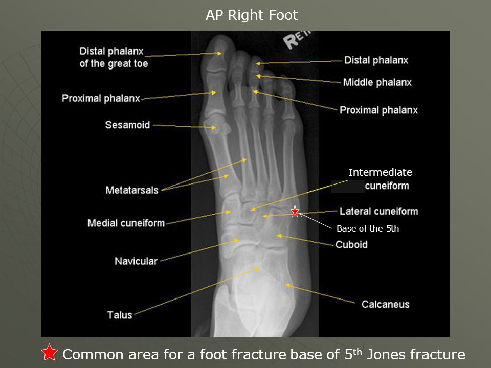 Common area for a foot fracture base of 5th Jones fracture