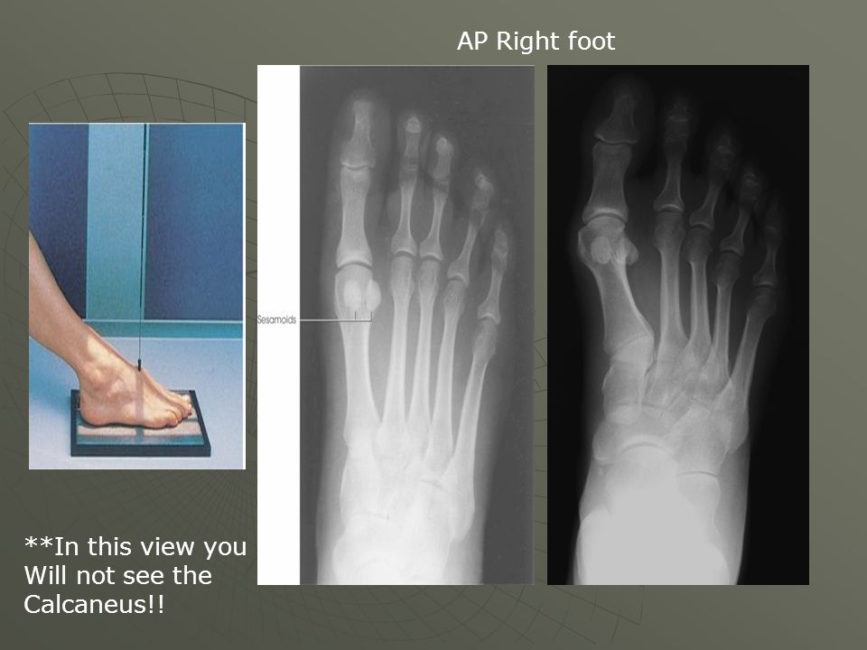 AP Right foot **In this view you Will not see the Calcaneus!!