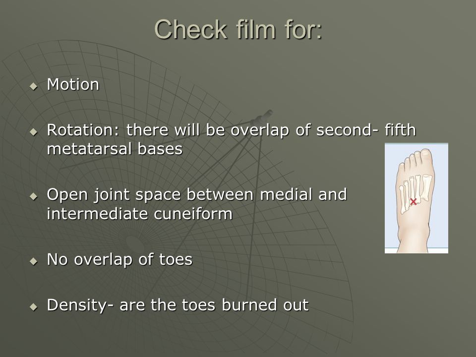 Check film for: Motion. Rotation: there will be overlap of second- fifth metatarsal bases.