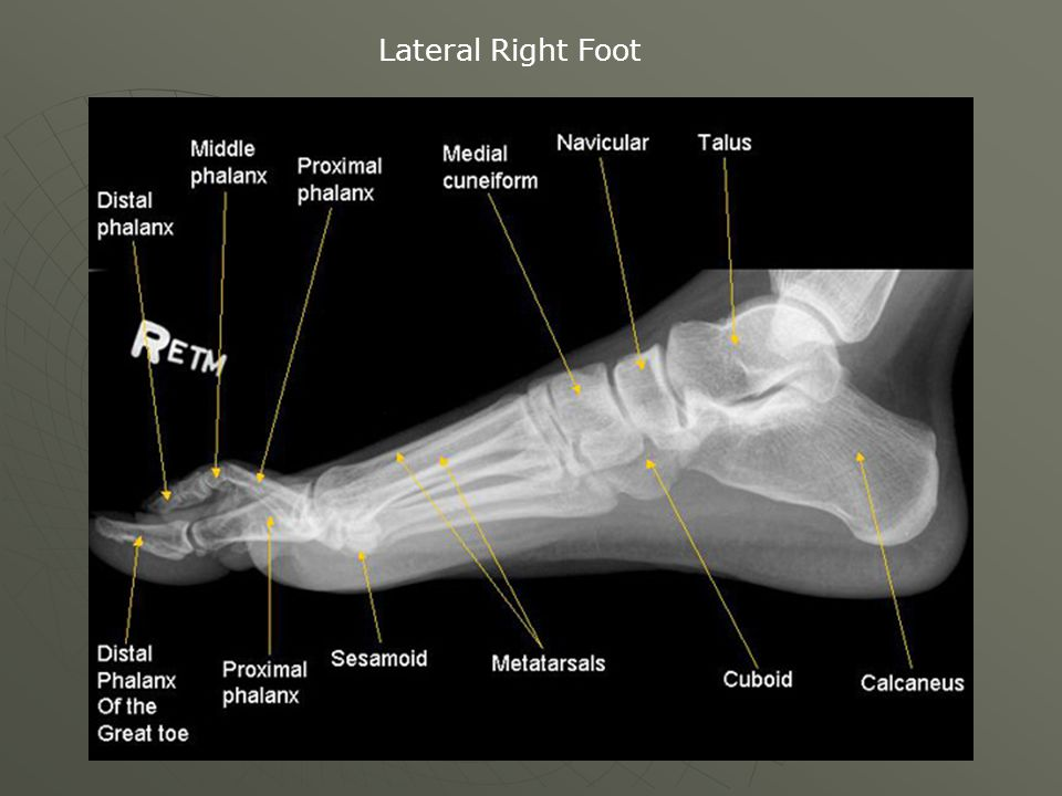 Lateral Right Foot