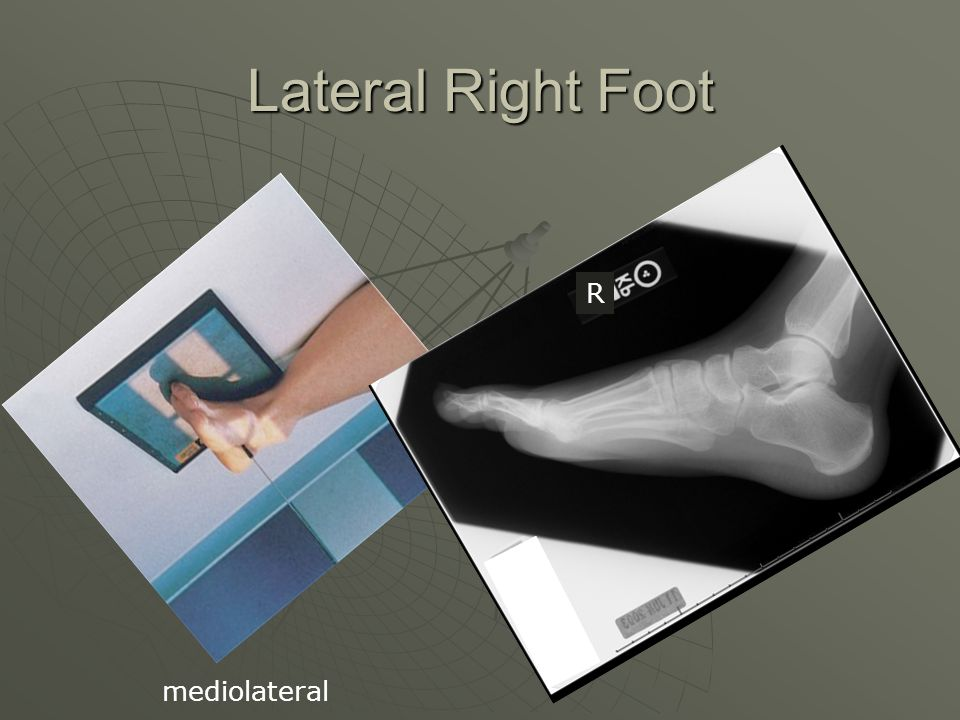 Lateral Right Foot R mediolateral