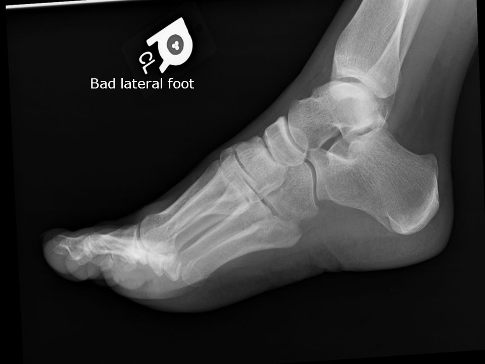 Bad lateral foot
