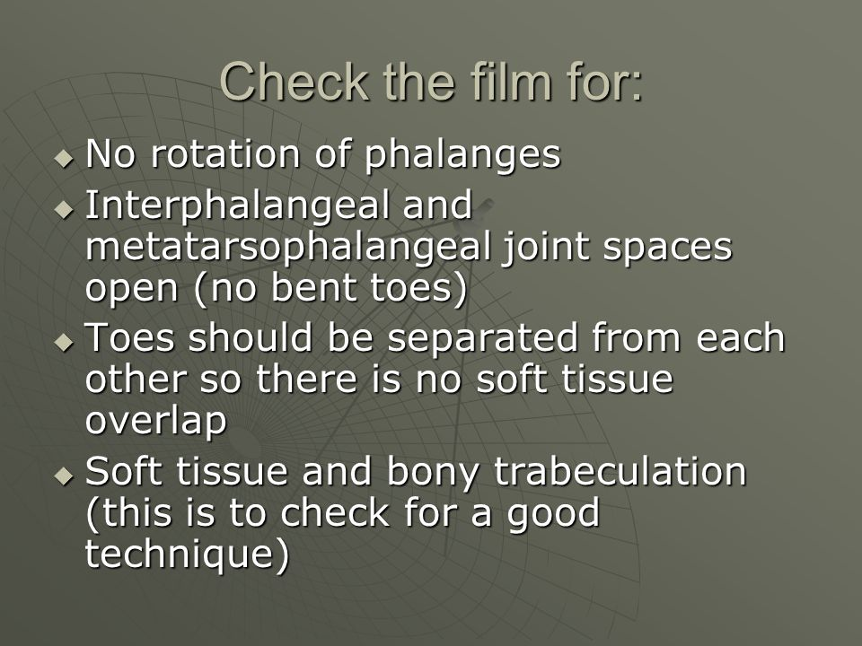 Check the film for: No rotation of phalanges