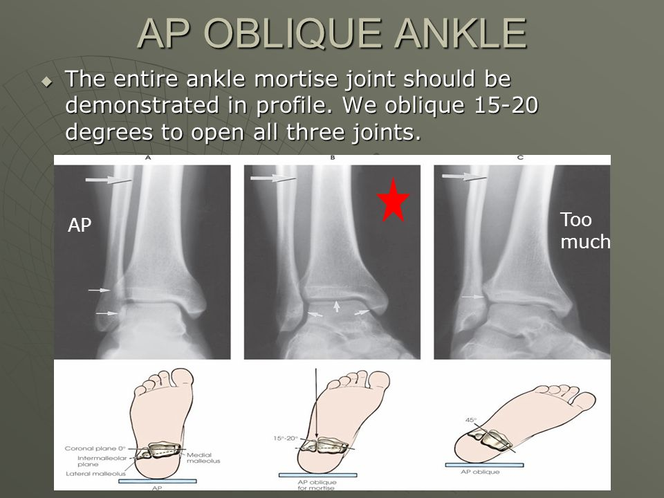 AP OBLIQUE ANKLE The entire ankle mortise joint should be demonstrated in profile. We oblique 15-20 degrees to open all three joints.