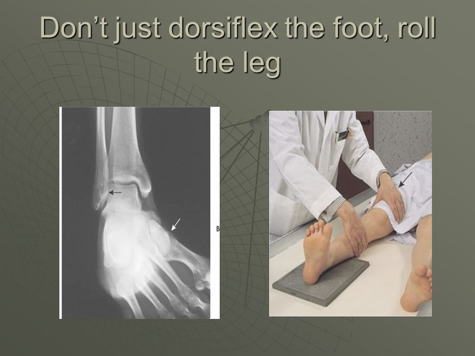 Don't just dorsiflex the foot, roll the leg