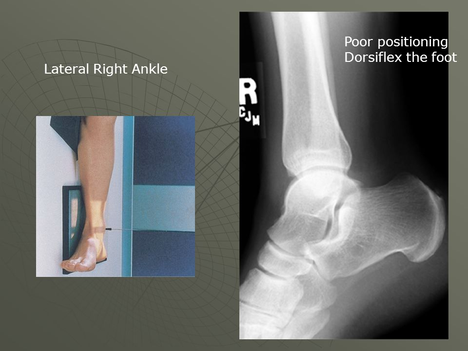 Poor positioning Dorsiflex the foot Lateral Right Ankle