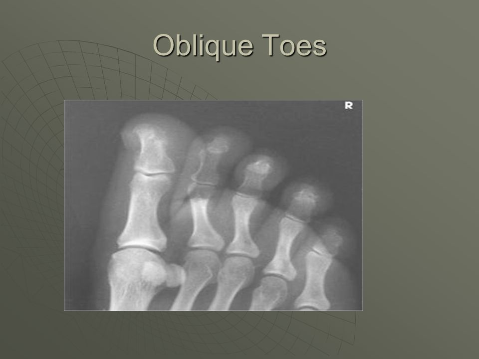 Oblique Toes