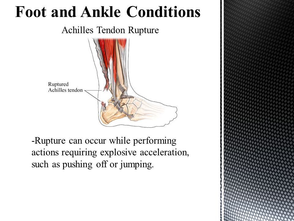 Foot and Ankle Conditions
