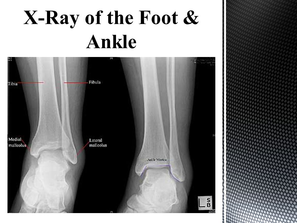 X-Ray of the Foot & Ankle