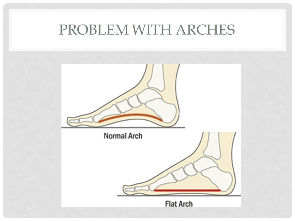 Problem with arches