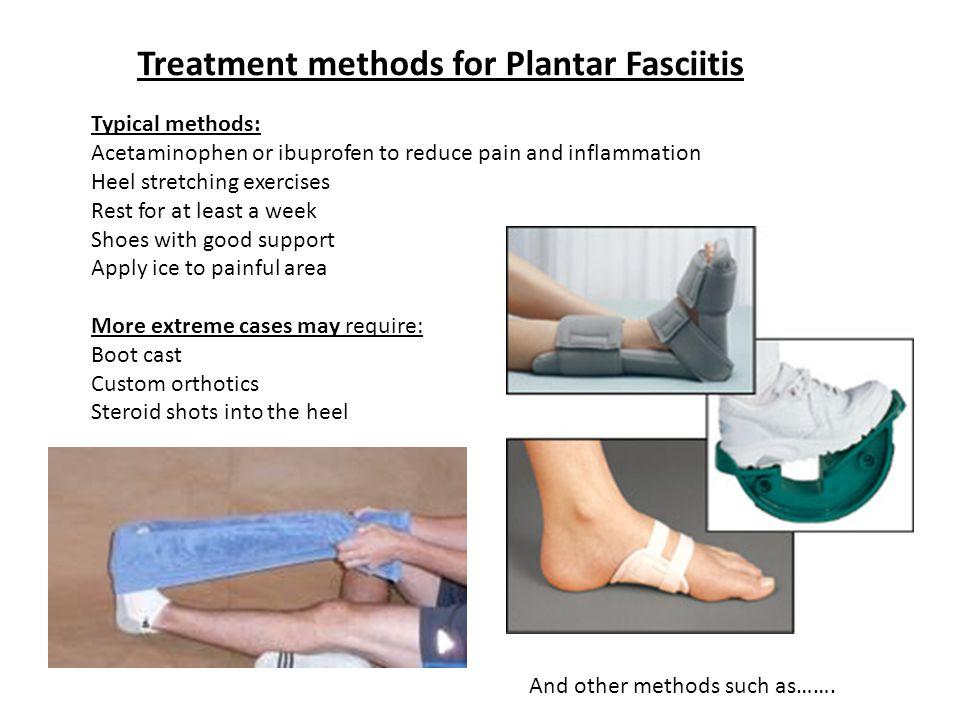 Treatment methods for Plantar Fasciitis