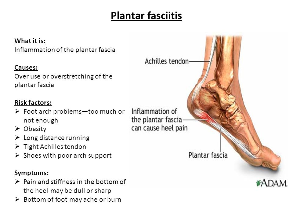 Plantar fasciitis What it is: Inflammation of the plantar fascia