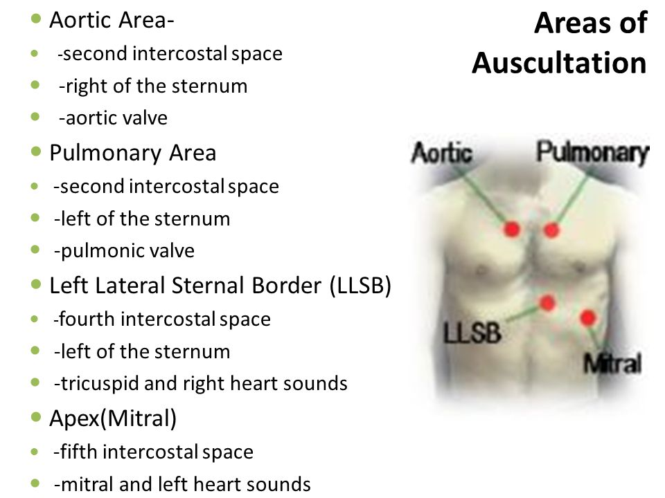 Areas of Auscultation Aortic Area- Pulmonary Area