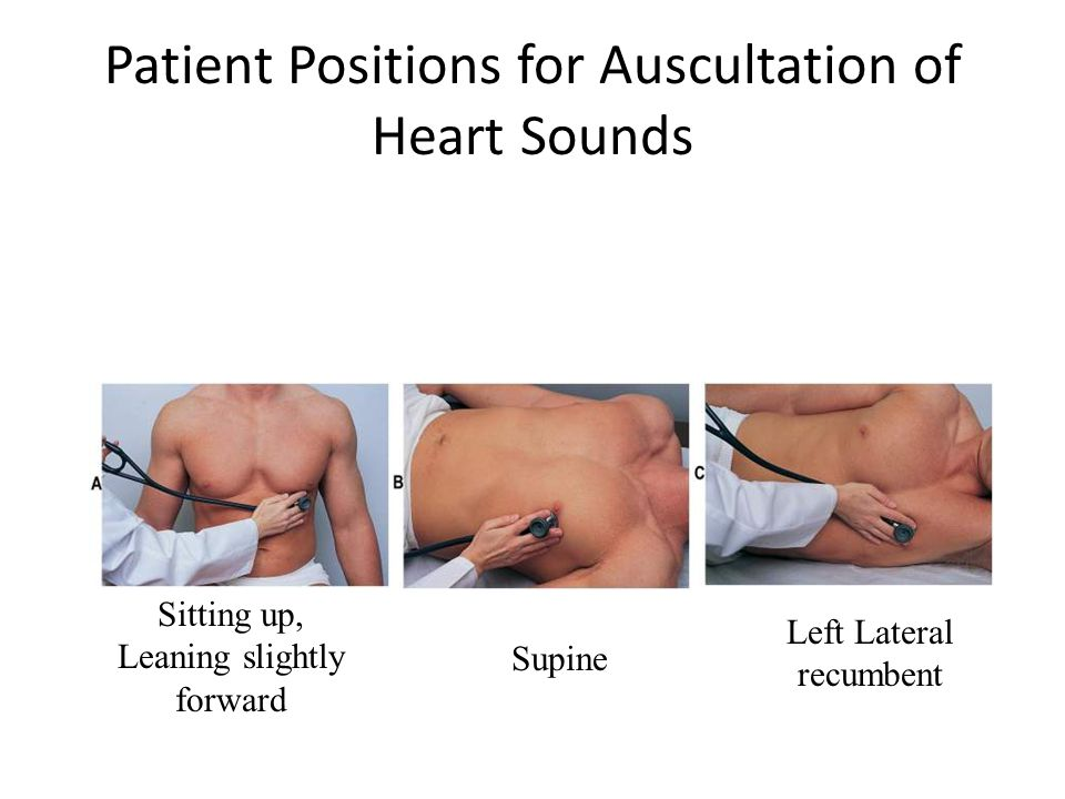 Patient Positions for Auscultation of Heart Sounds