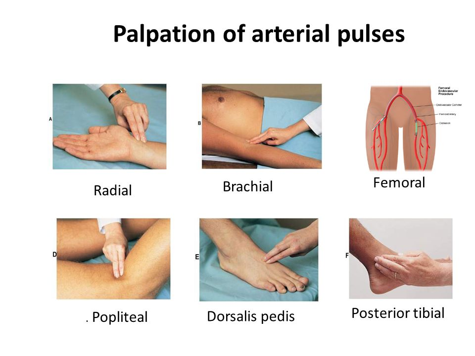 Palpation of arterial pulses