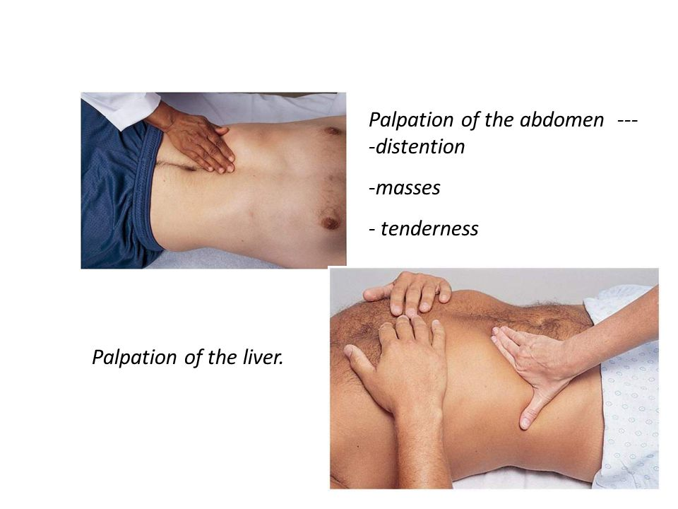 Palpation of the abdomen ----distention