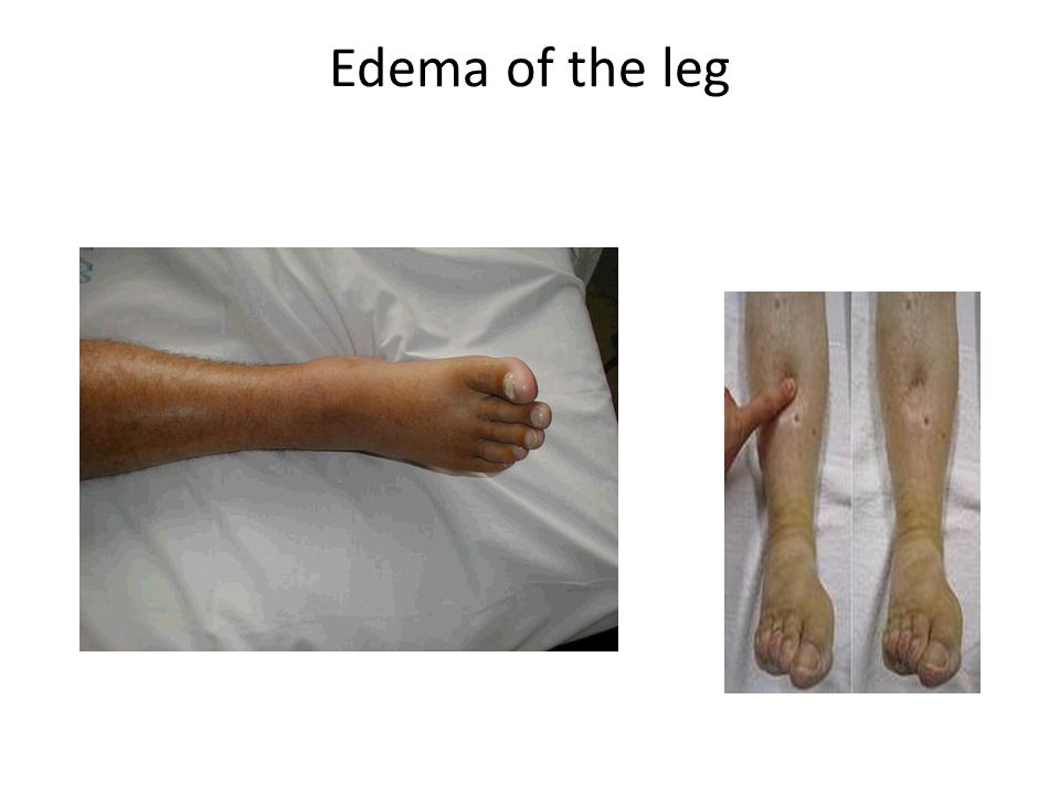 Edema of the leg