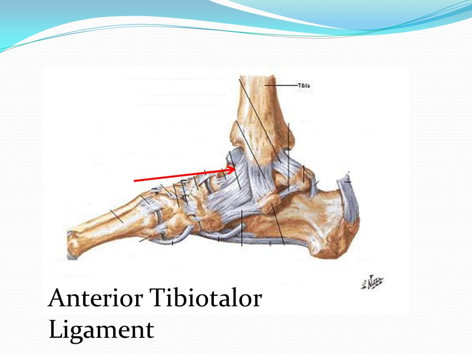 Anterior Tibiotalor Ligament