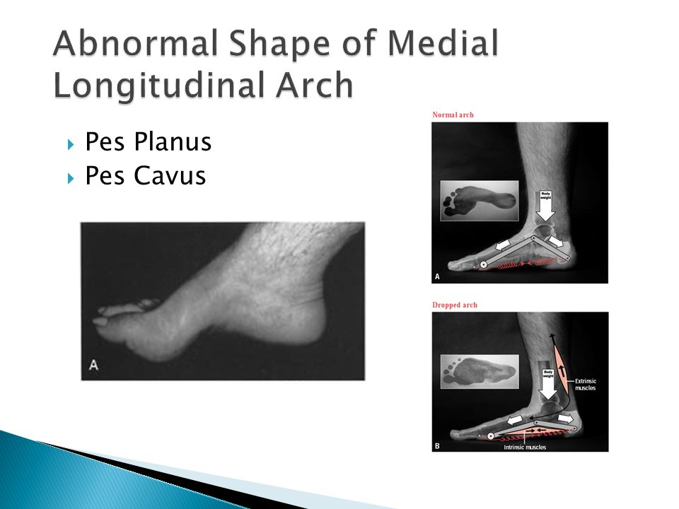 Abnormal Shape of Medial Longitudinal Arch