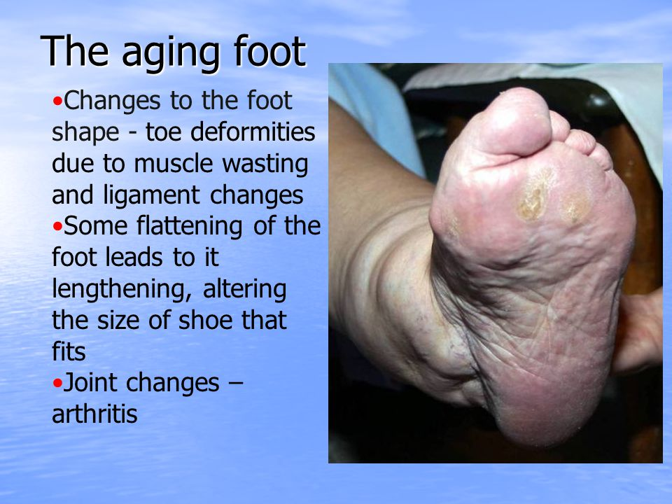 The aging foot Changes to the foot shape - toe deformities due to muscle wasting and ligament changes.
