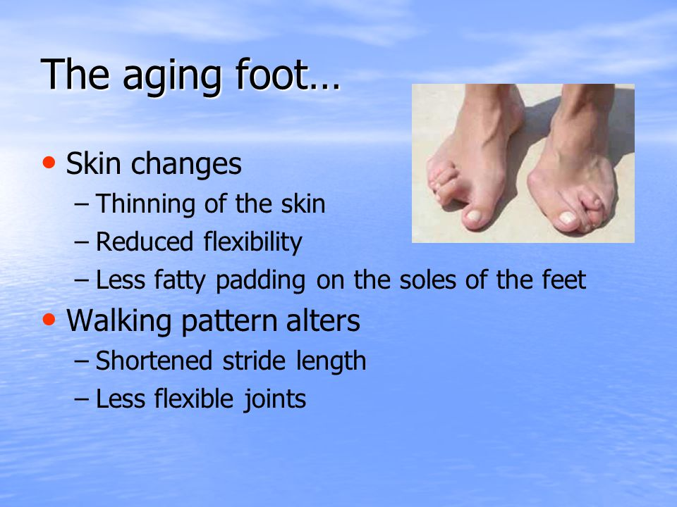 The aging foot… Skin changes Walking pattern alters