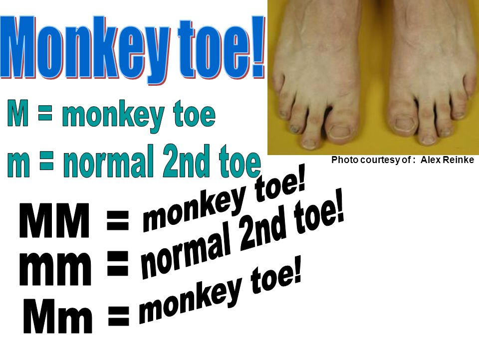 Monkey toe! M = monkey toe m = normal 2nd toe monkey toe!