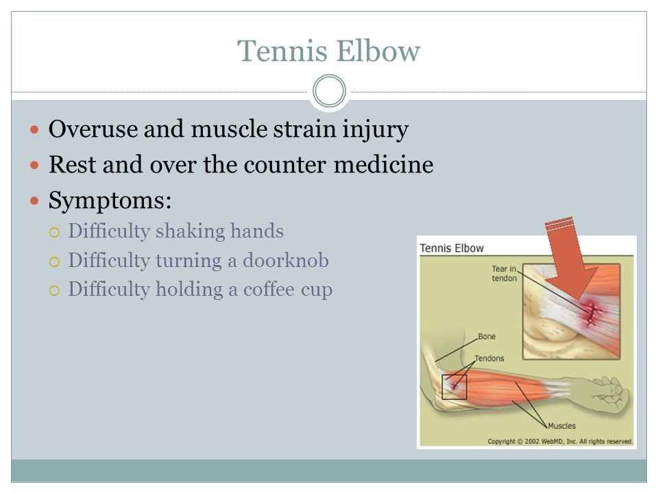 Tennis Elbow Overuse and muscle strain injury