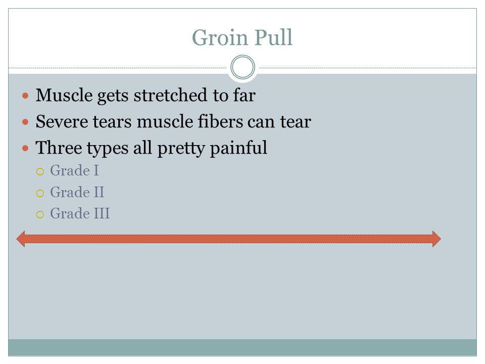 Groin Pull Muscle gets stretched to far