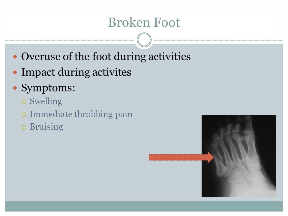 Broken Foot Overuse of the foot during activities