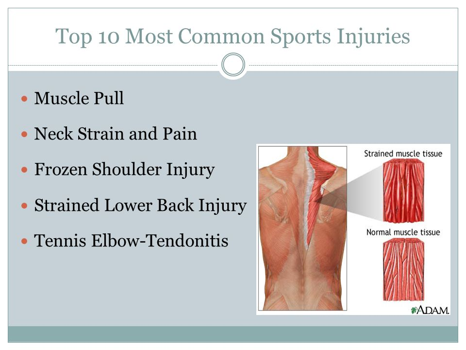 Top 10 Most Common Sports Injuries