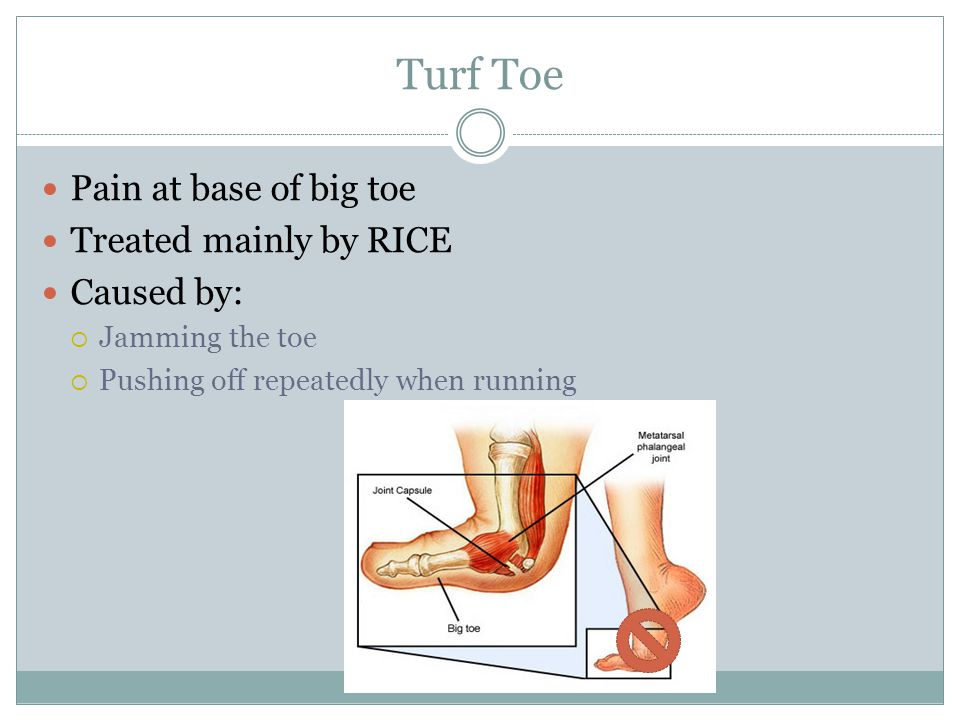 Turf Toe Pain at base of big toe Treated mainly by RICE Caused by: