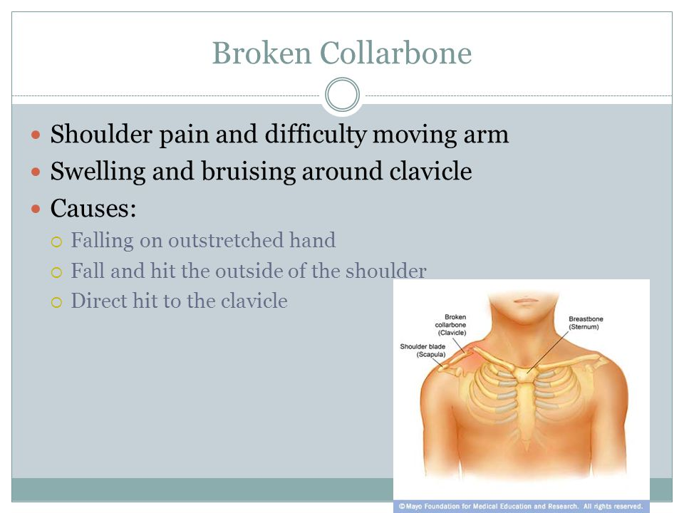 Broken Collarbone Shoulder pain and difficulty moving arm