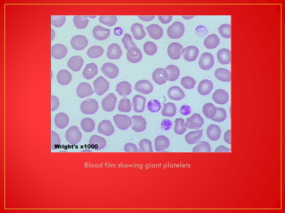 Blood film showing giant platelets