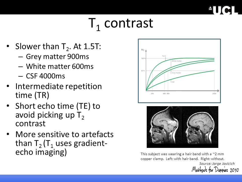 T1 contrast Slower than T2. At 1.5T: Intermediate repetition time (TR)