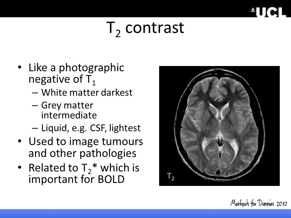 T2 contrast Like a photographic negative of T1