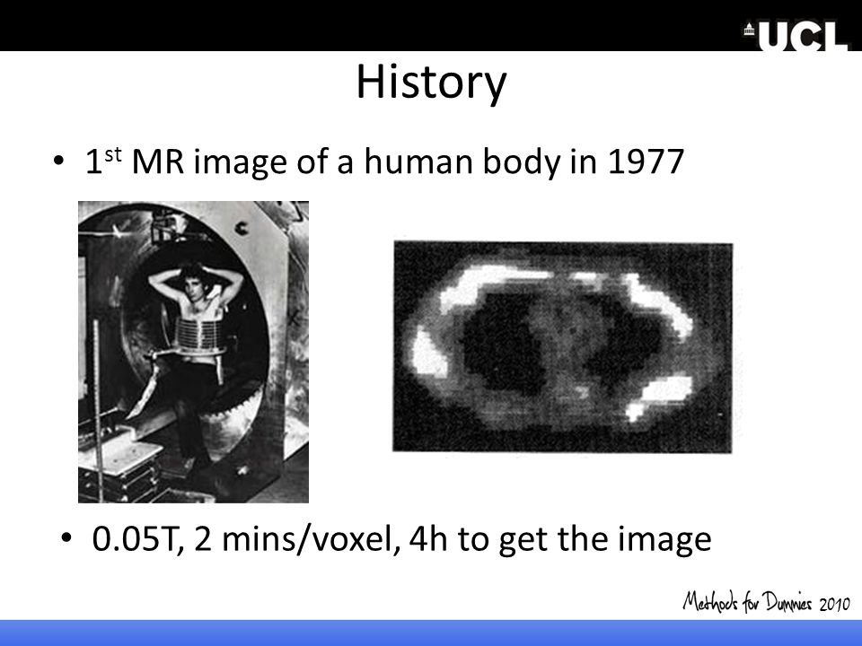 History 1st MR image of a human body in 1977