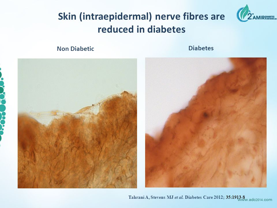 Skin (intraepidermal) nerve fibres are reduced in diabetes