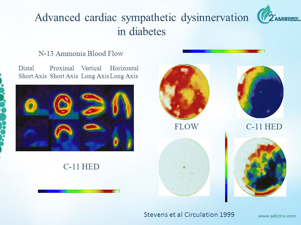 Advanced cardiac sympathetic dysinnervation in diabetes